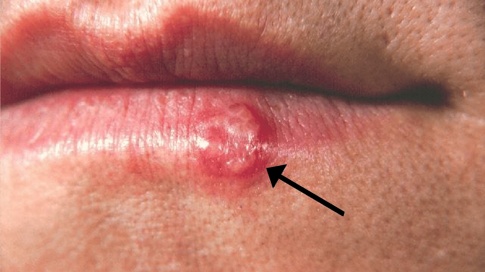 Herpes Simplex Virus (HSV) and HIV
