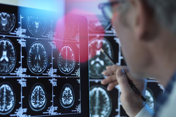 Doctor viewing brain scans