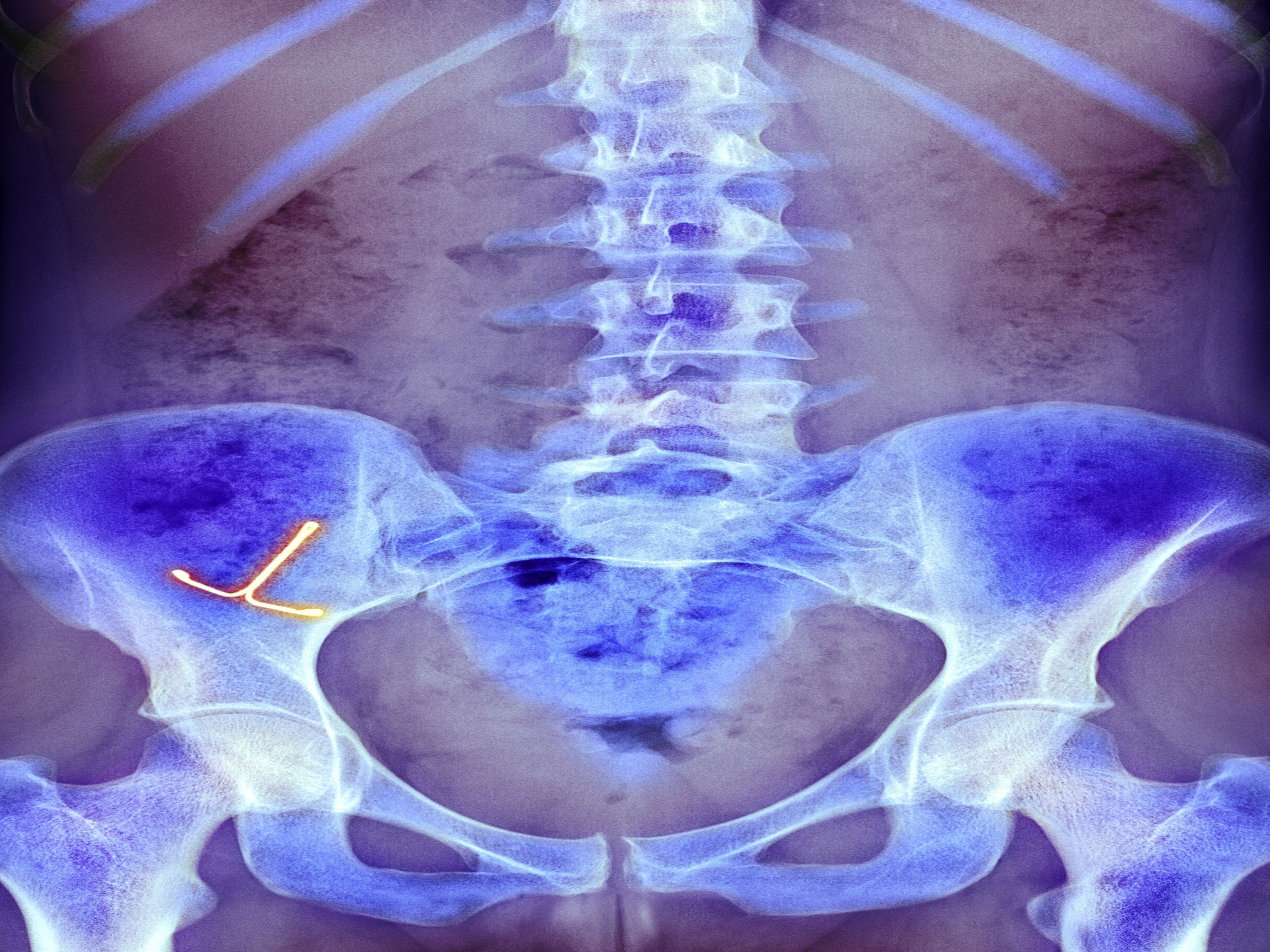 IUD Risks and Complications