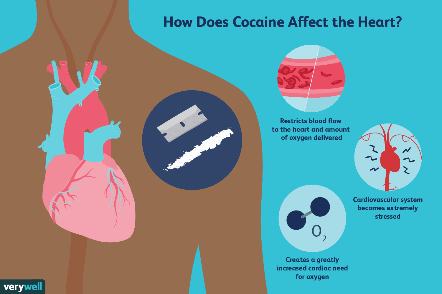can+cocaine+cause+joint+pain