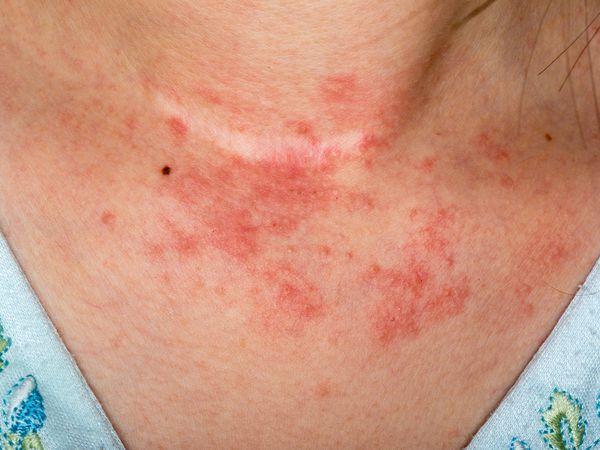 Contact dermatitis rash on woman's neck - symptoms of contact dermatitis