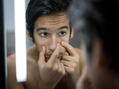 Puberty age and pimples boy at mirror