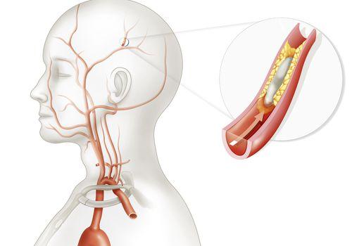 An illustration showing the cause of a TIA.