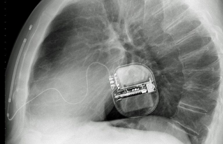 Implantable defribillator
