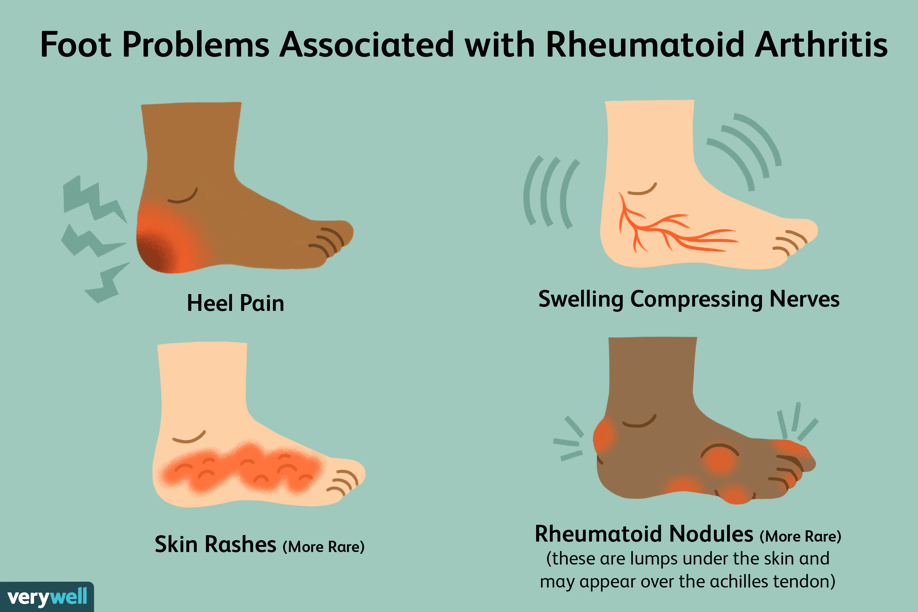 Pain In The Feet As A Symptom Of Rheumatoid Arthritis