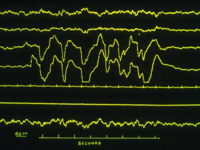 A seizure ictal phase