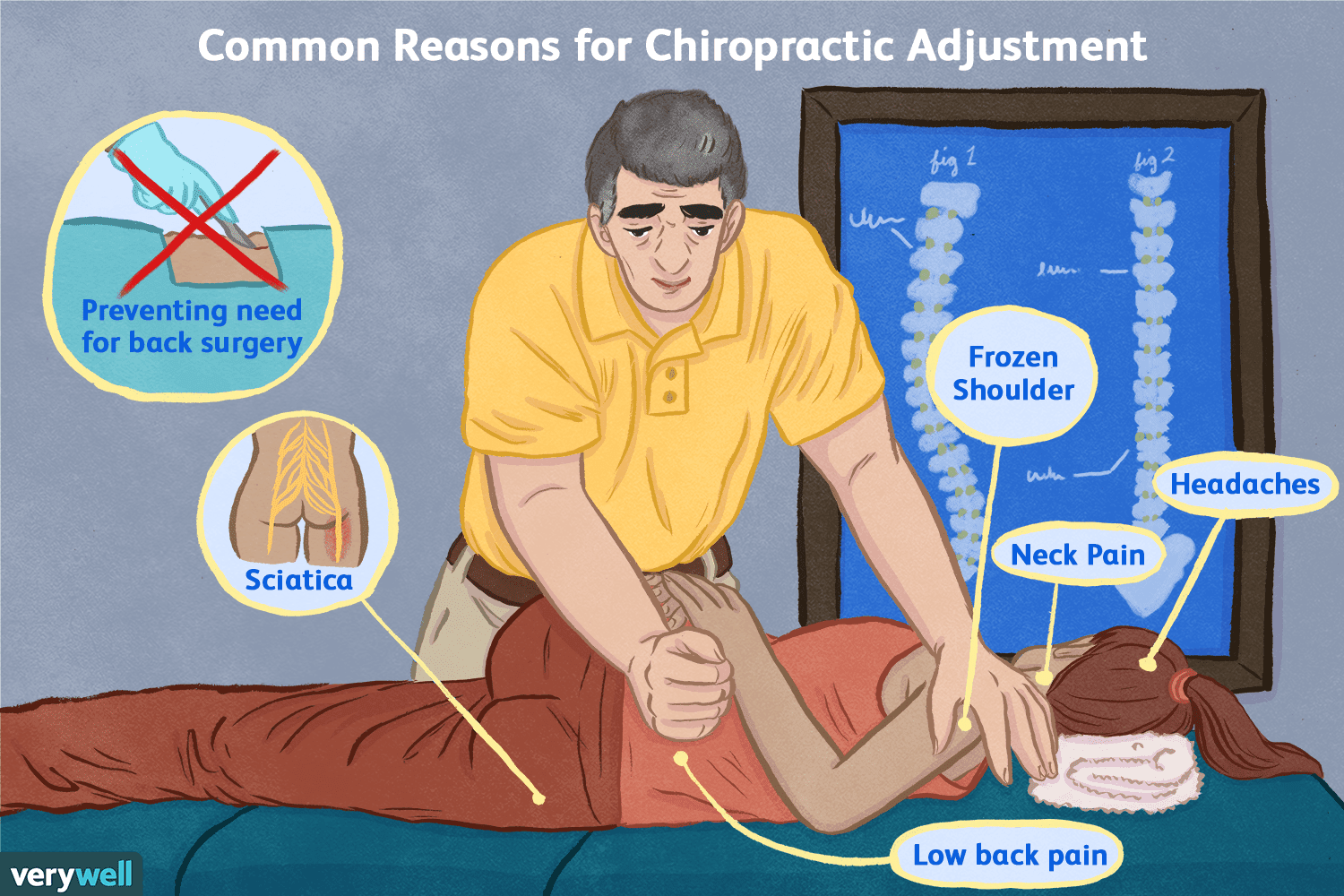 Chiropractic Adjustment: Benefits ...