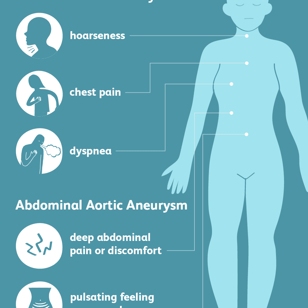 Aortic Aneurysm: Symptoms and Complications
