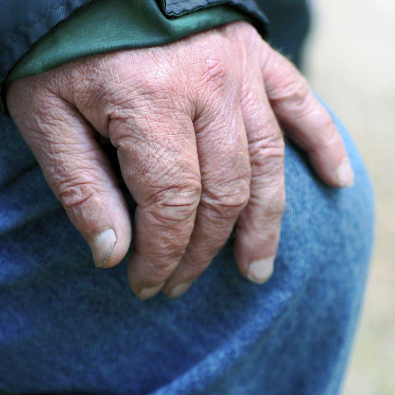 Older Man S Hand Showing Fingernails
