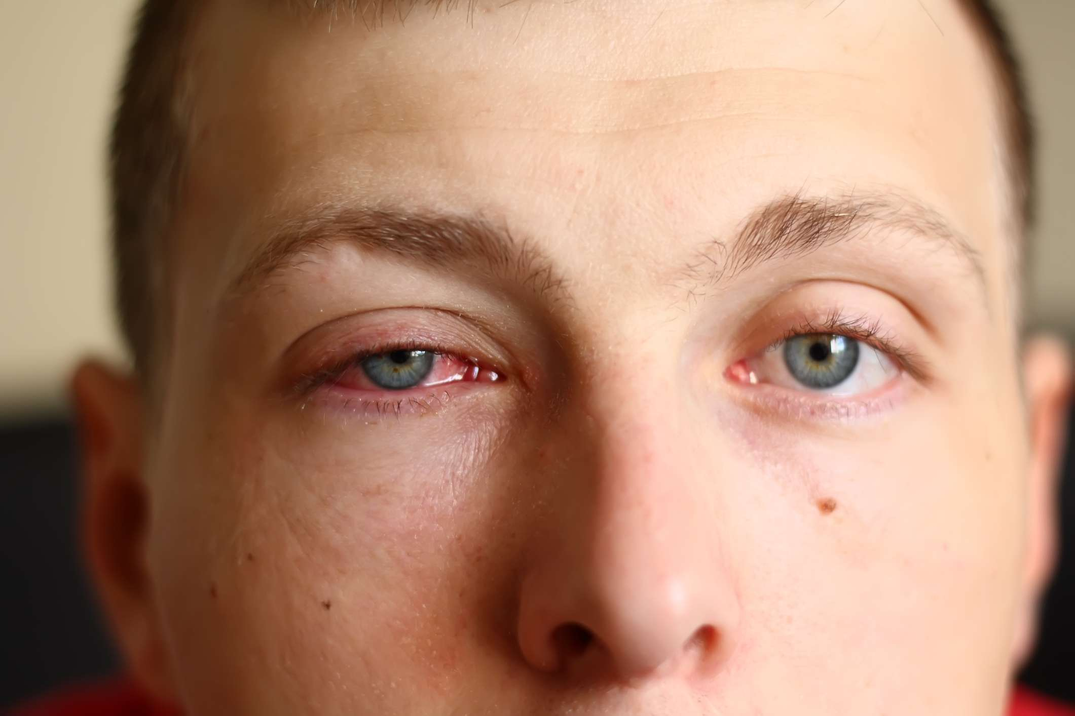 Man with a pink eye.