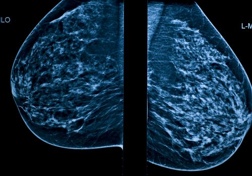 A composite x-ray of a right and left breast on a mammogram.