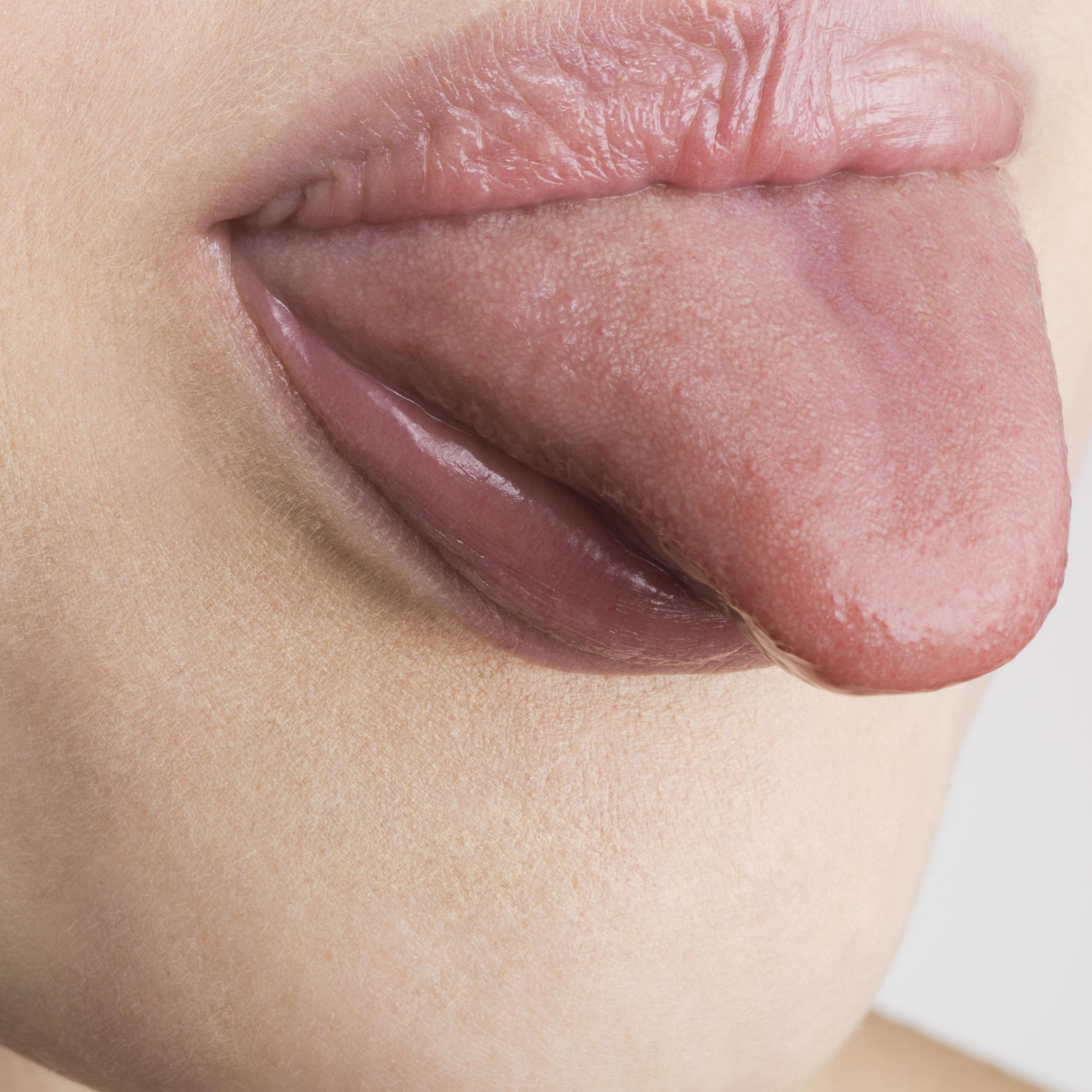 Causes of a Swollen Tongue and Typical Remedies