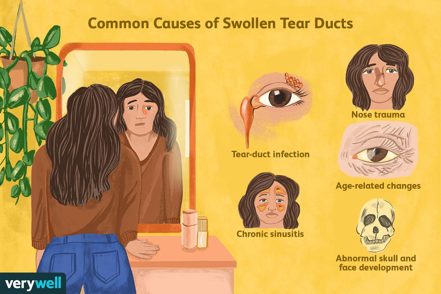 Common Causes of Swollen Tear Ducts