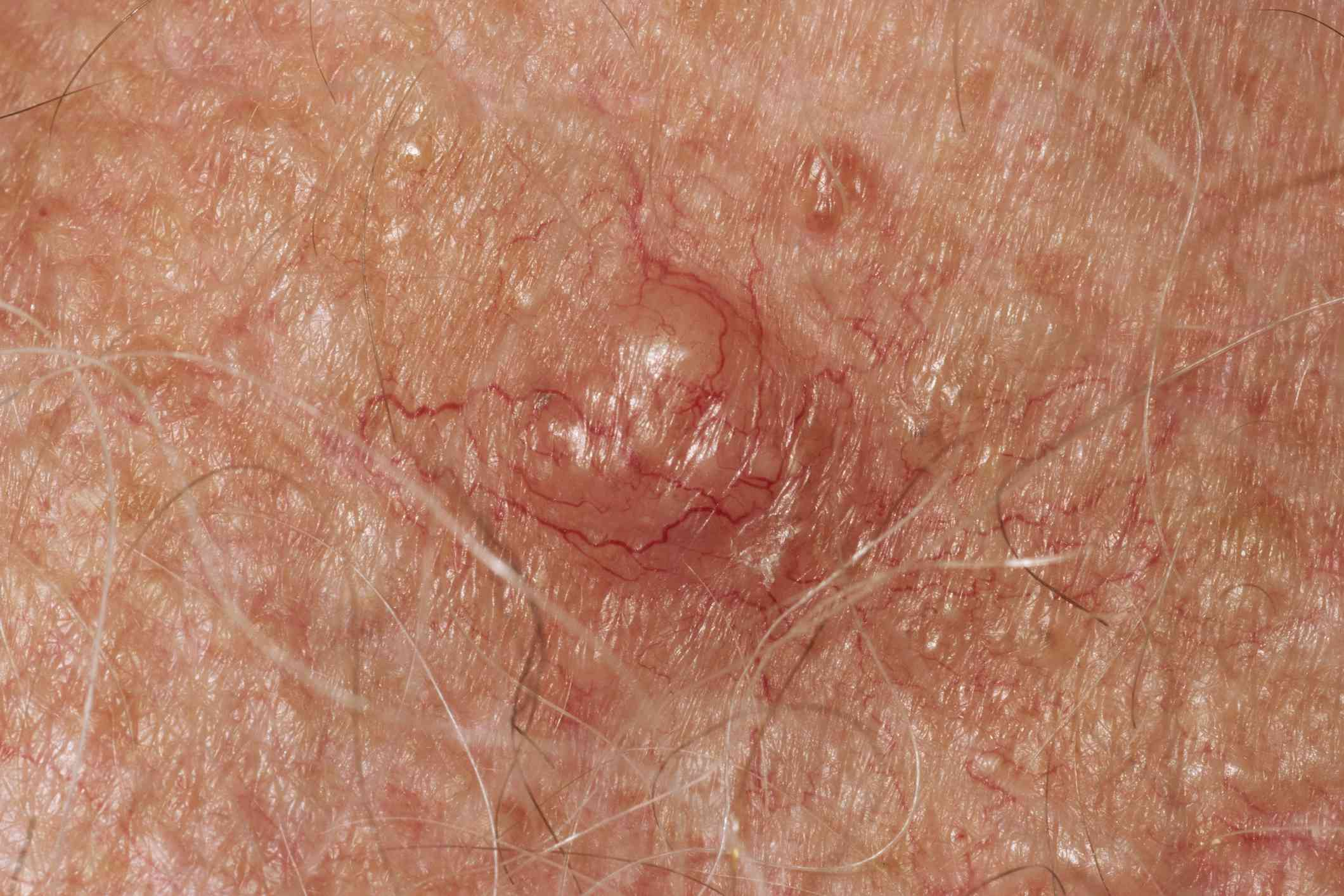 Skin cancer, close-up - stock photo