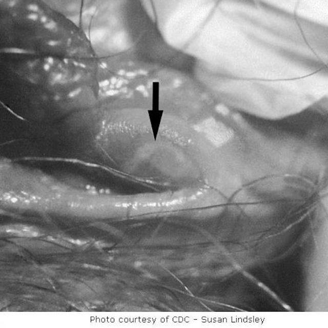 Lesion on Vulva