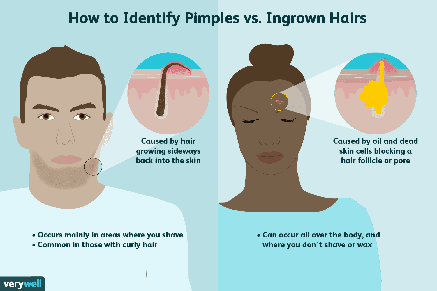 Difference Between a Pimple and an Ingrown Hair