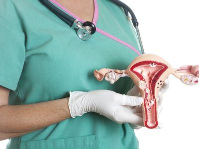 Nurse holding a model of a uterus