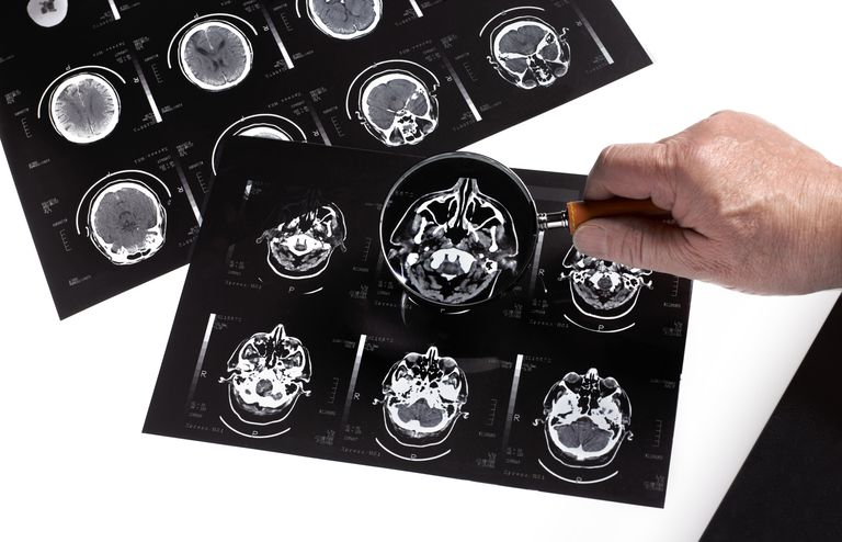 person's hand holding up a magnifying glass to a brain scan