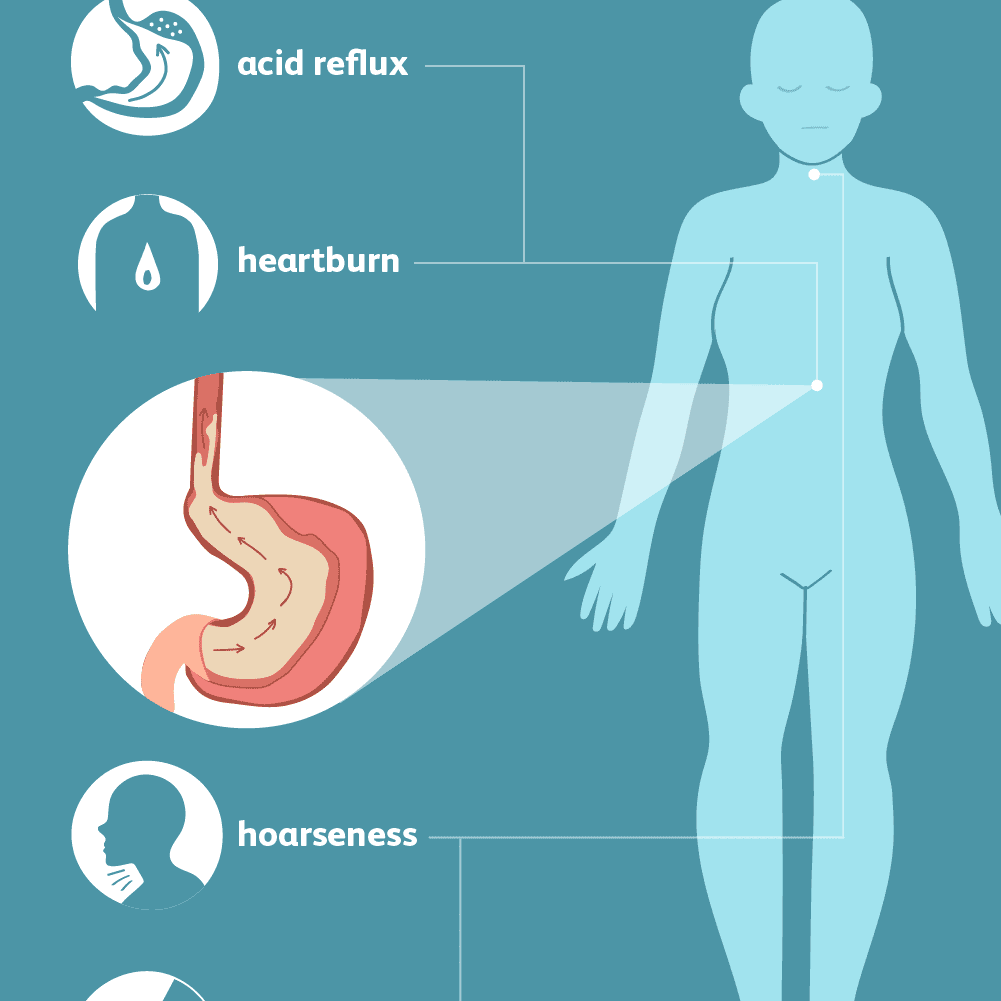 symptoms of gastroesophageal reflux disease (gerd)