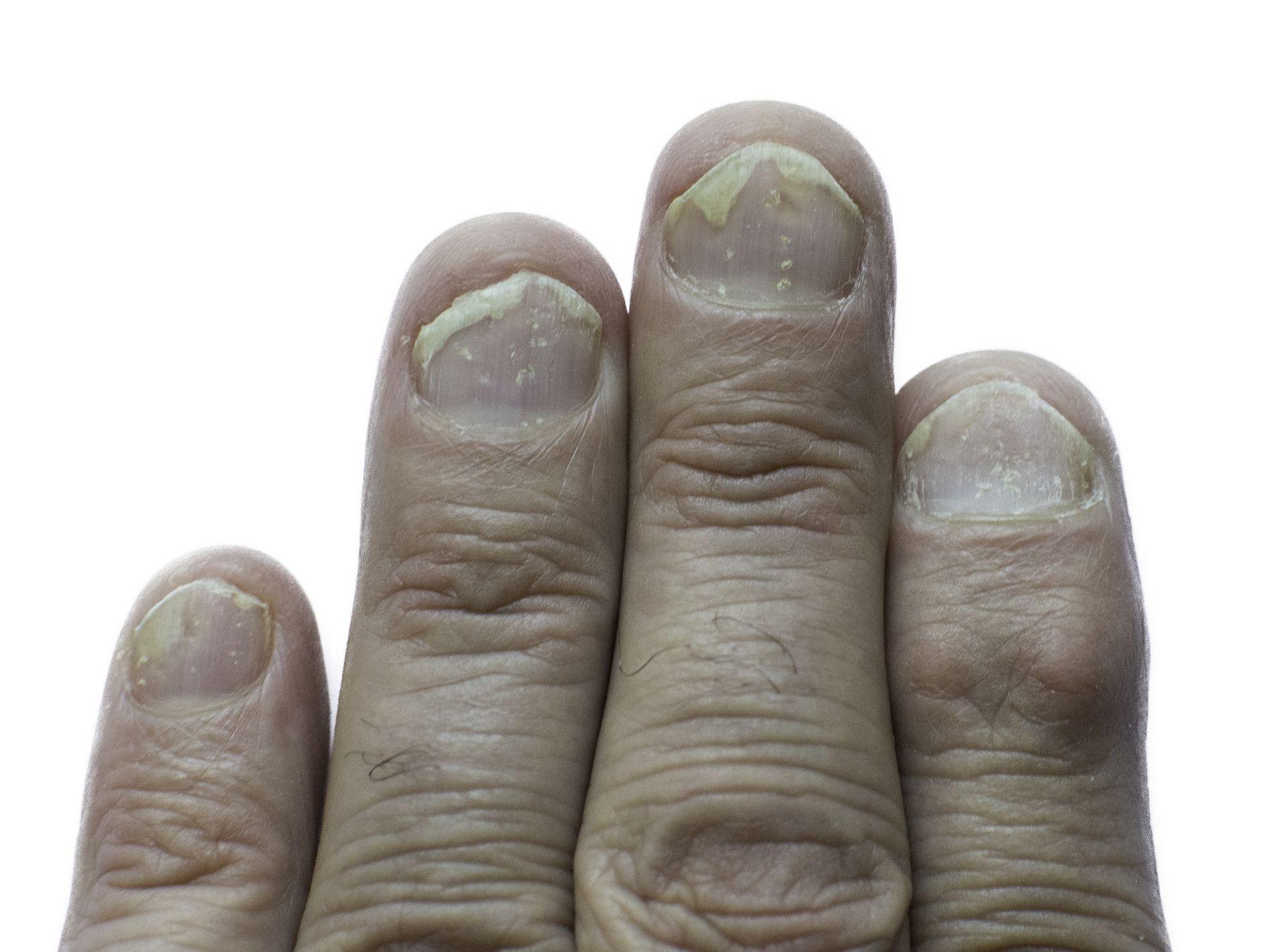 nail psoriasis or fungus