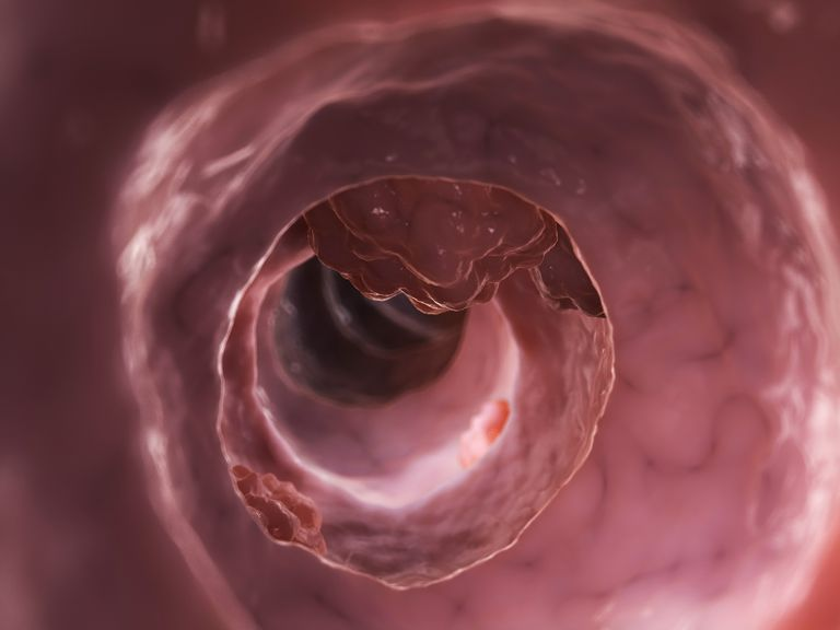 Inside of a colon