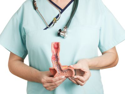 Esophagus illnesses - stock photo
