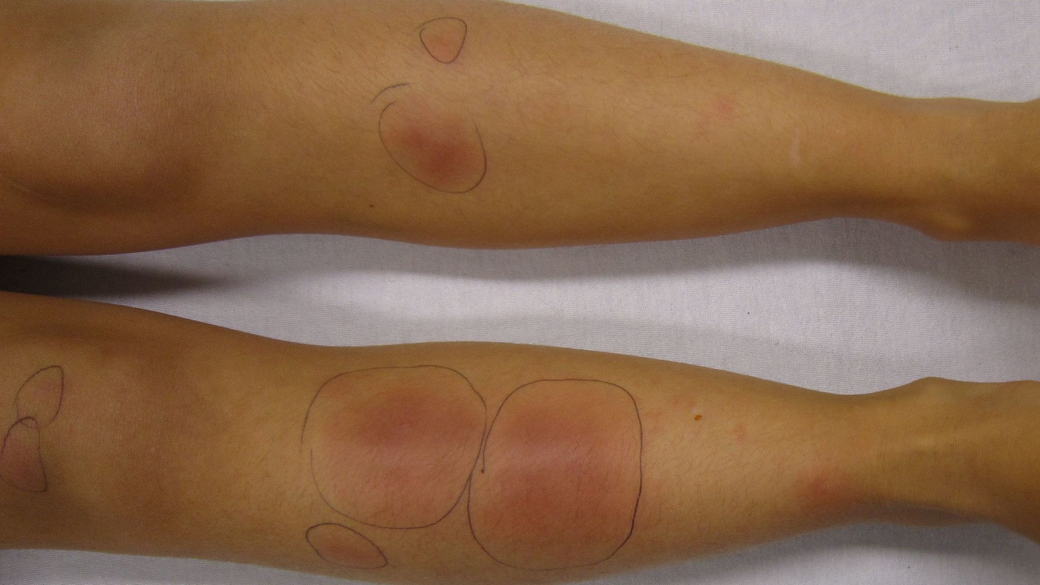 Panniculitis Causes, Symptoms, and Treatments