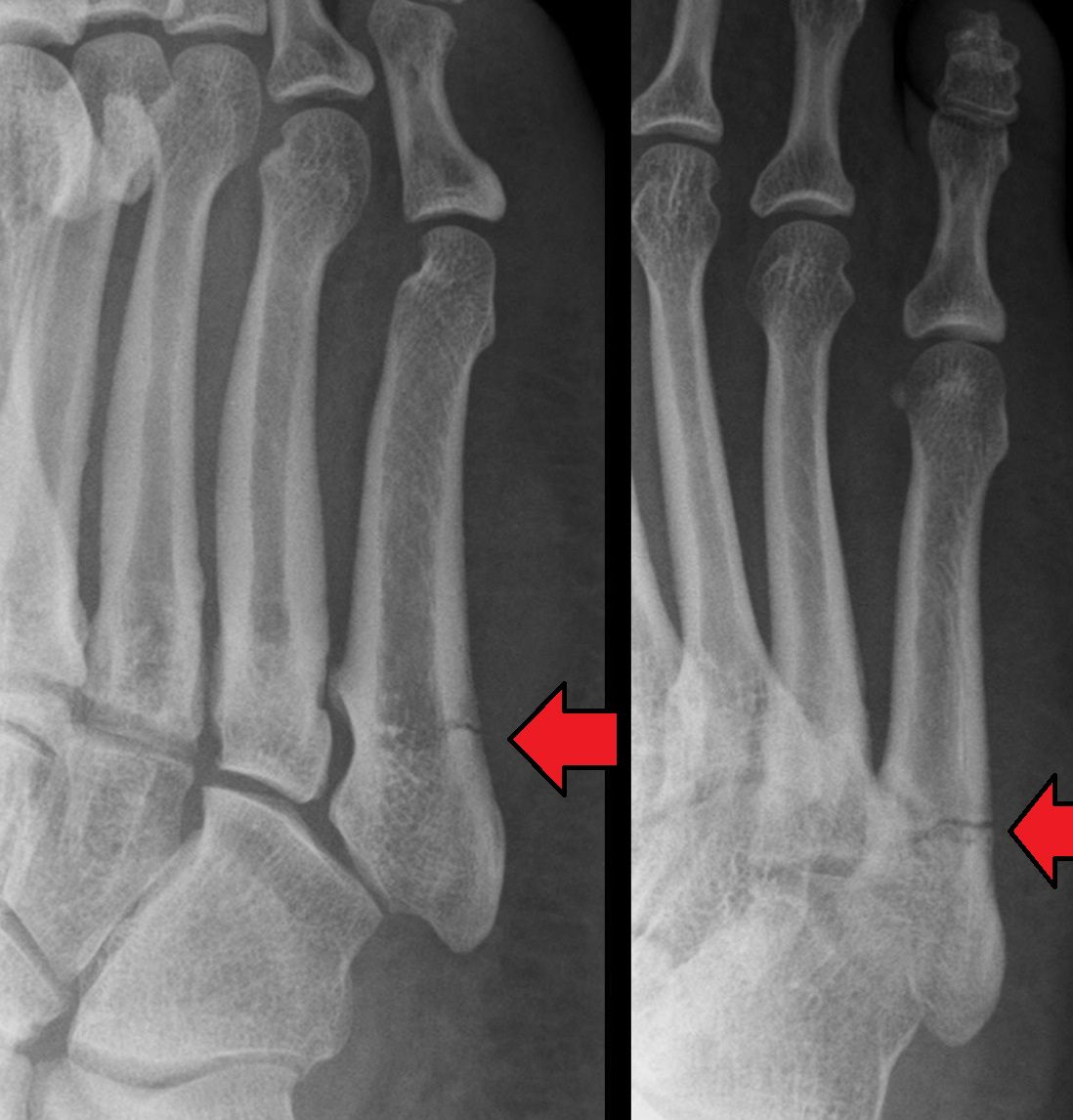 Stress Test Wiki: Fifth Metatarsal Or Jones Fracture