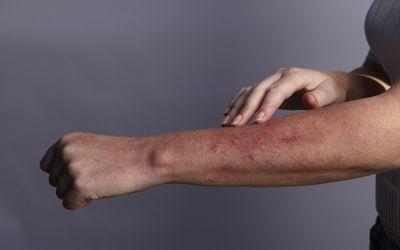 Hand feeling rash on arm