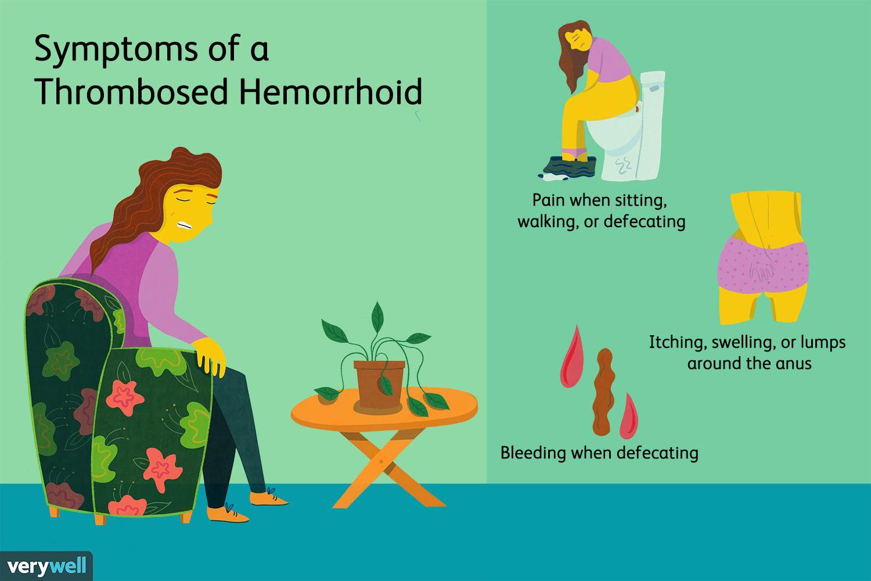 Symptoms of a Thrombosed Hemorrhoid