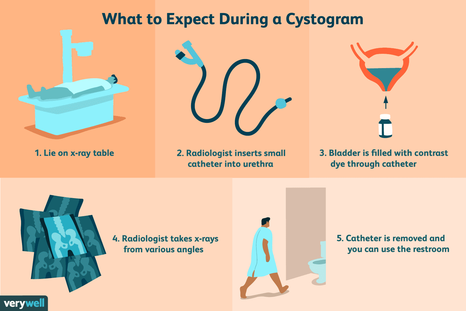 What to Expect During a Cystogram