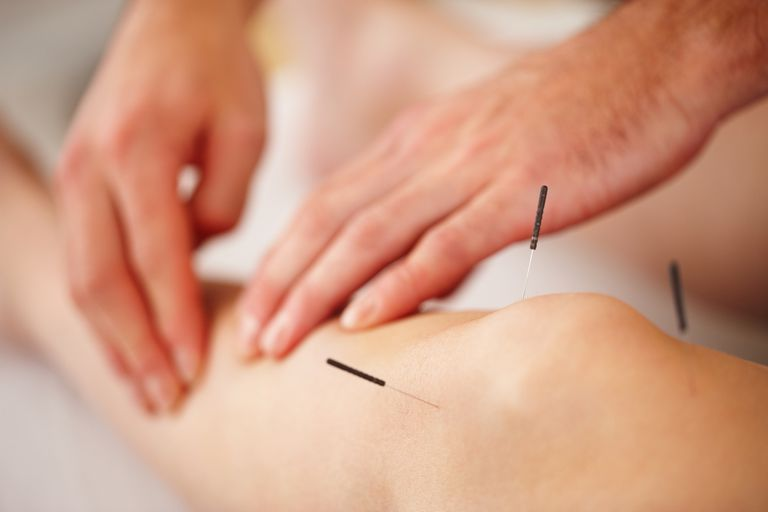 Woman treated with acupuncture
