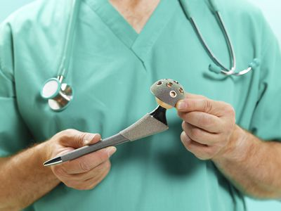 Doctor holding hip replacement