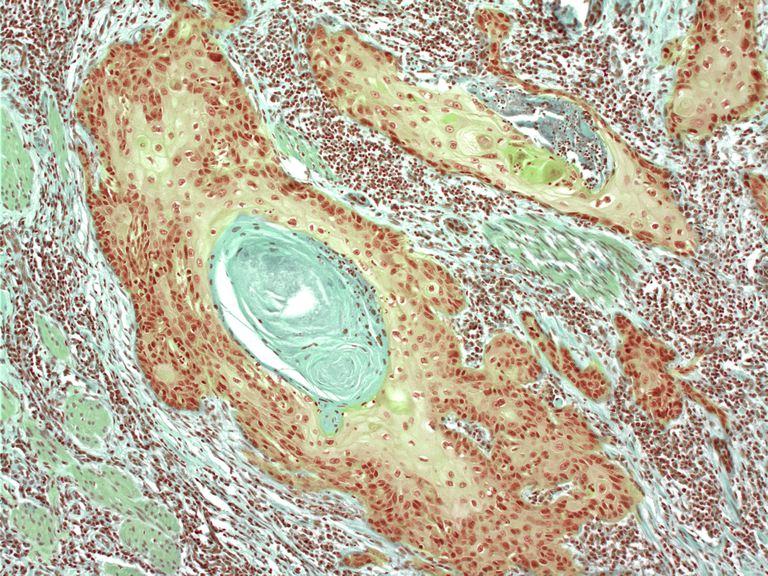 Skin cancer, light micrograph