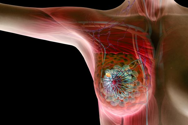 diagram of the breast showing a breast lump