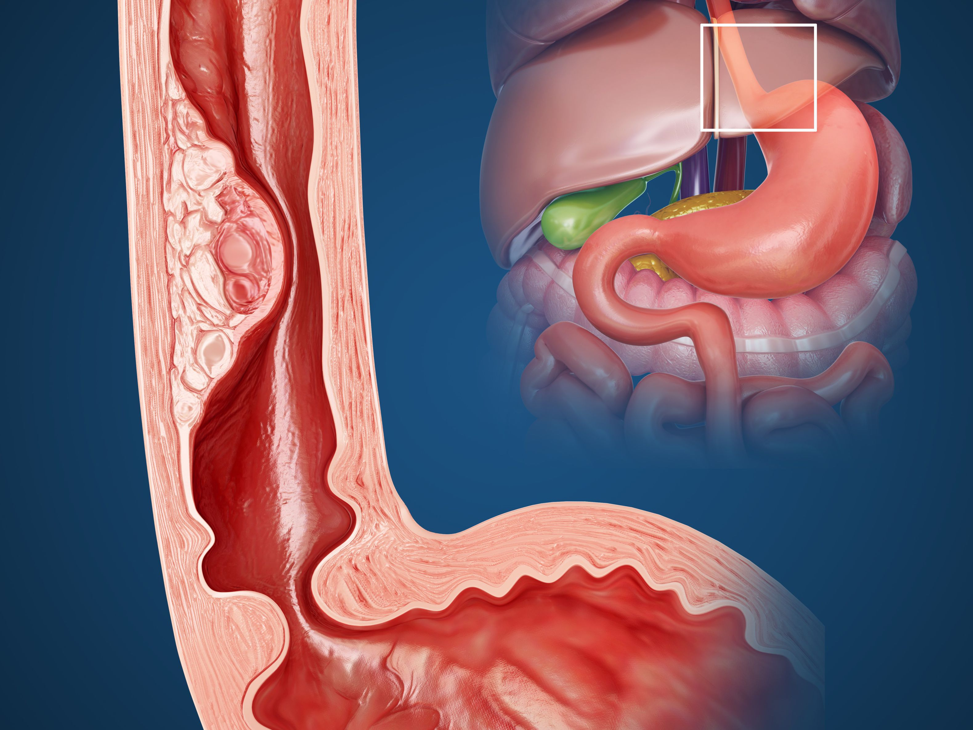 What to Expect With Esophageal Dilation