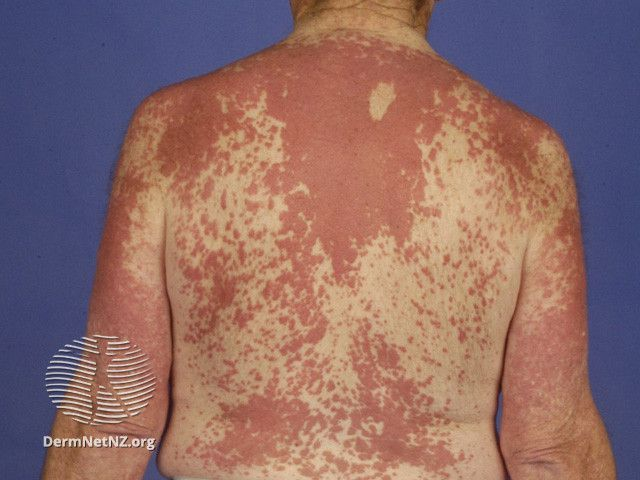 Interstitial granulomatous dermatitis