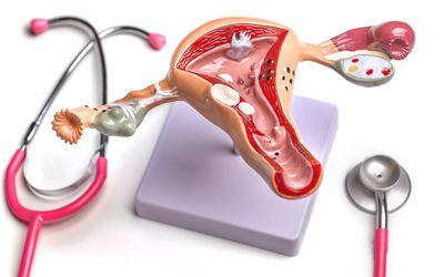 Uterus and Ovary anatomical model showing common pathologies