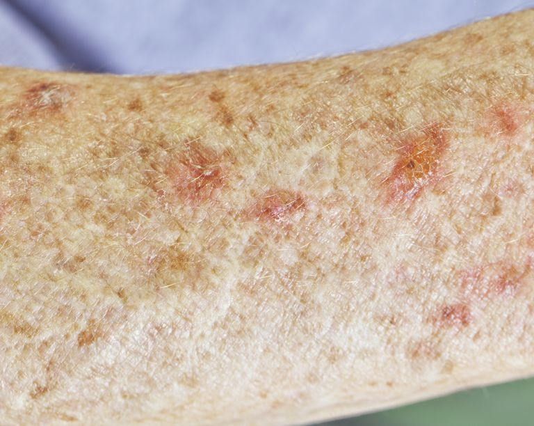 Actinic Keratosis condition