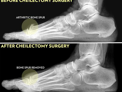 Cheilectomy operation before and after