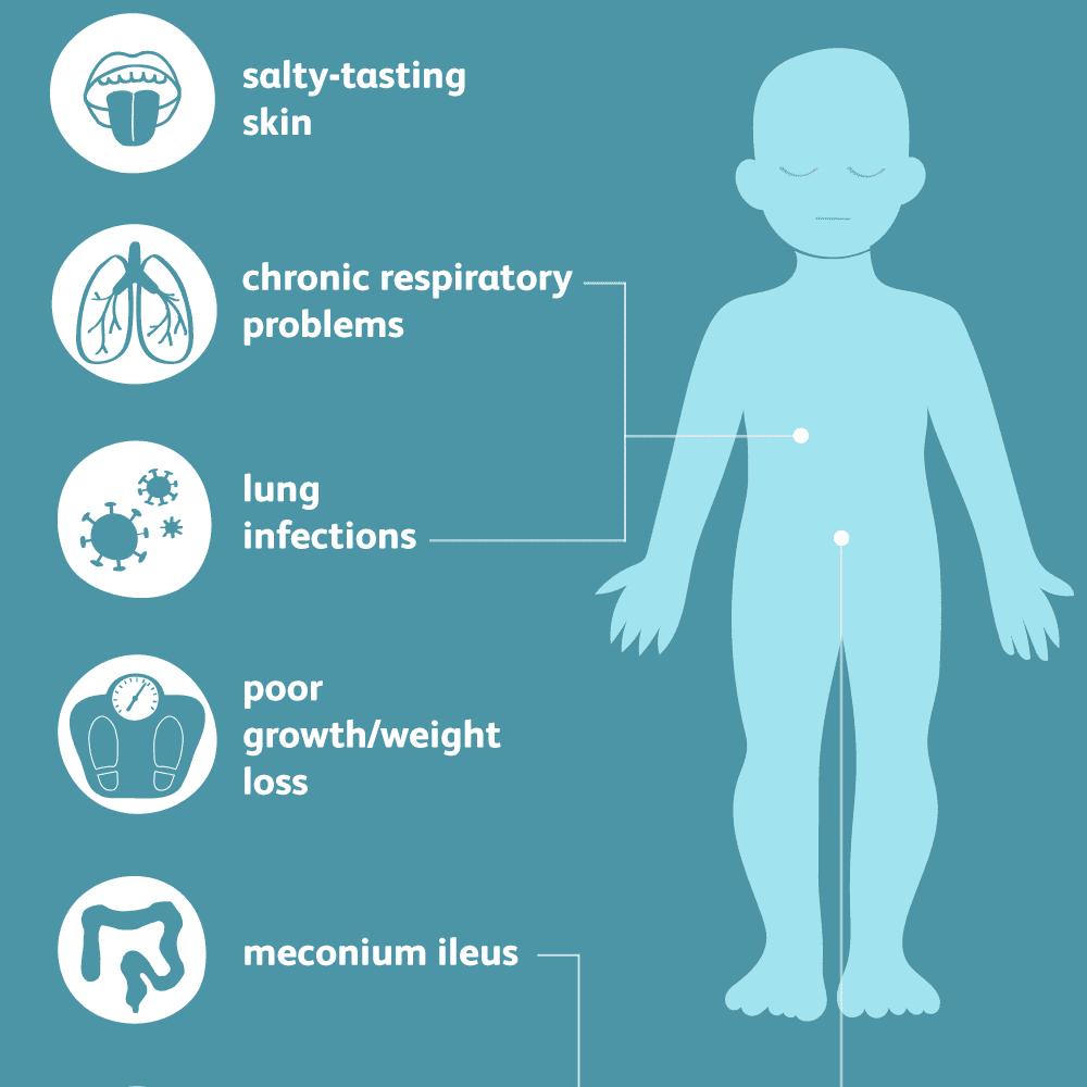 cystic fibrosis: common symptoms