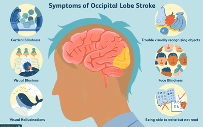 The Effects of a Parietal Lobe Stroke