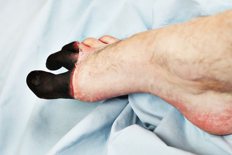 a person's foot with frostbite on the toes