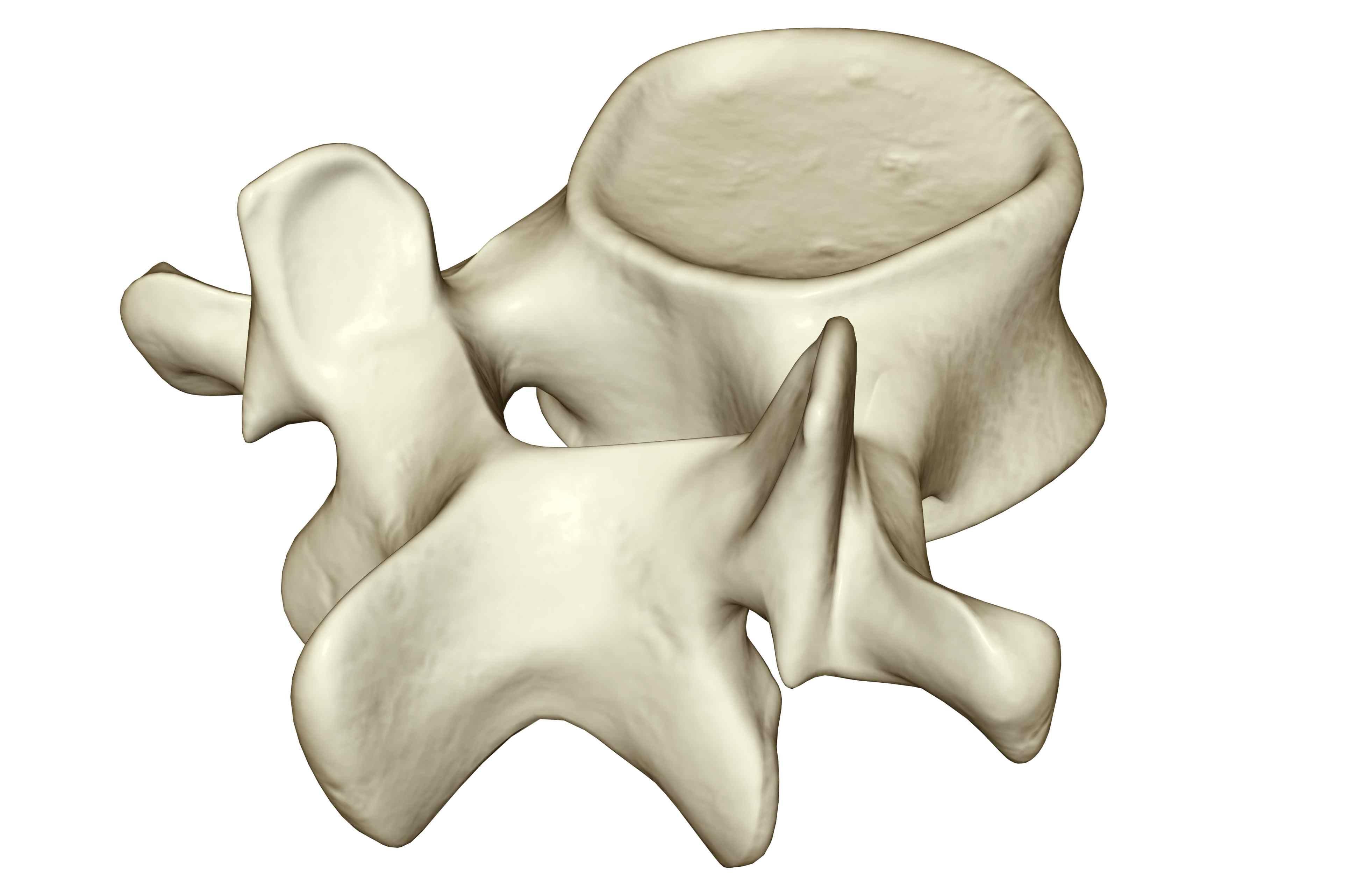 Vertebra or spinal bone
