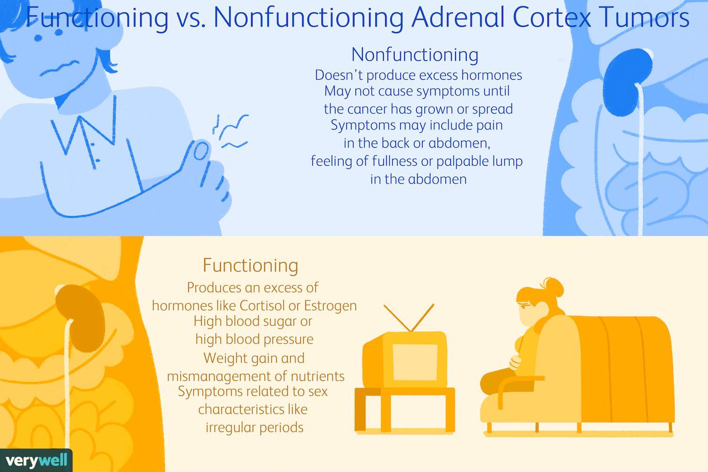 Functioning vs. Nonfunctioning Adrenal Cortex Tumors
