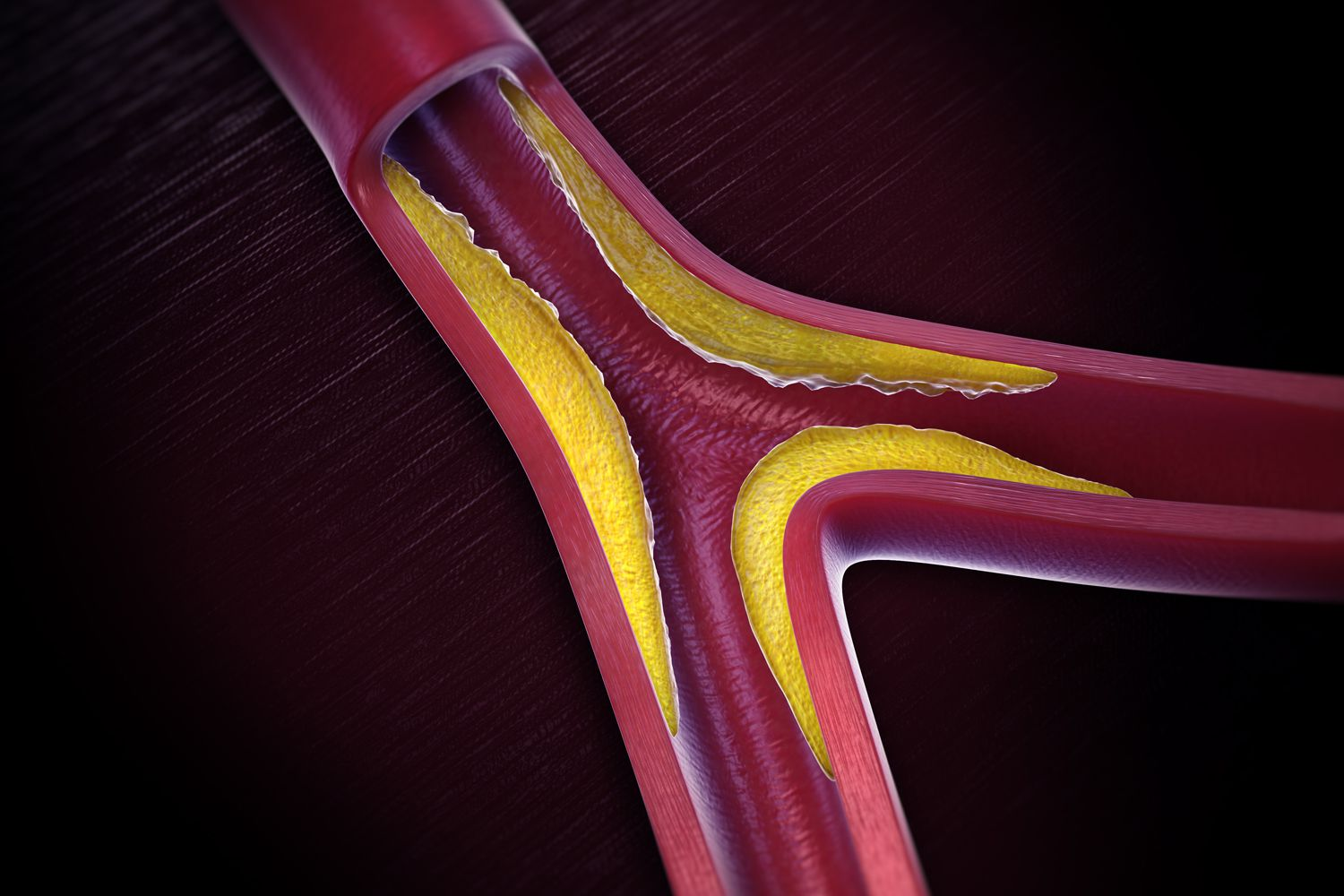 Atherosclerosis, caused by cholesterol