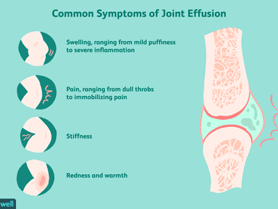 common joint effusion symptoms