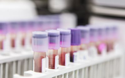 test tubes of blood looking for tumor markers with breast cancer