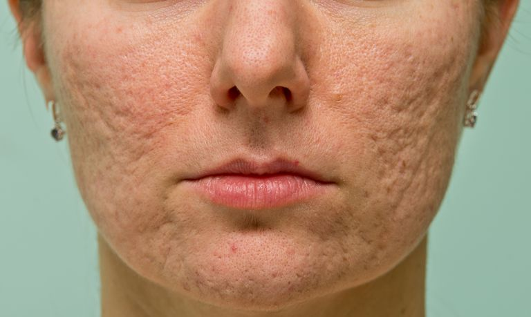 a woman with acne scars