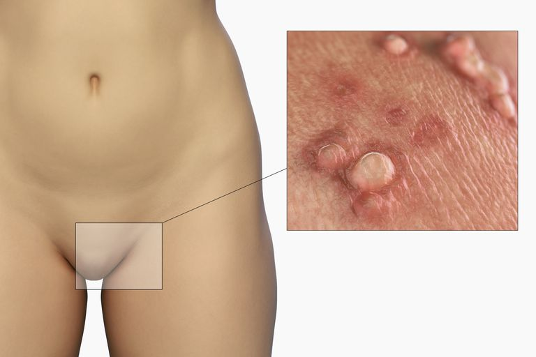 Genital Warts illustration